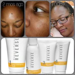 Reverse: reduces brown spots and sun damage